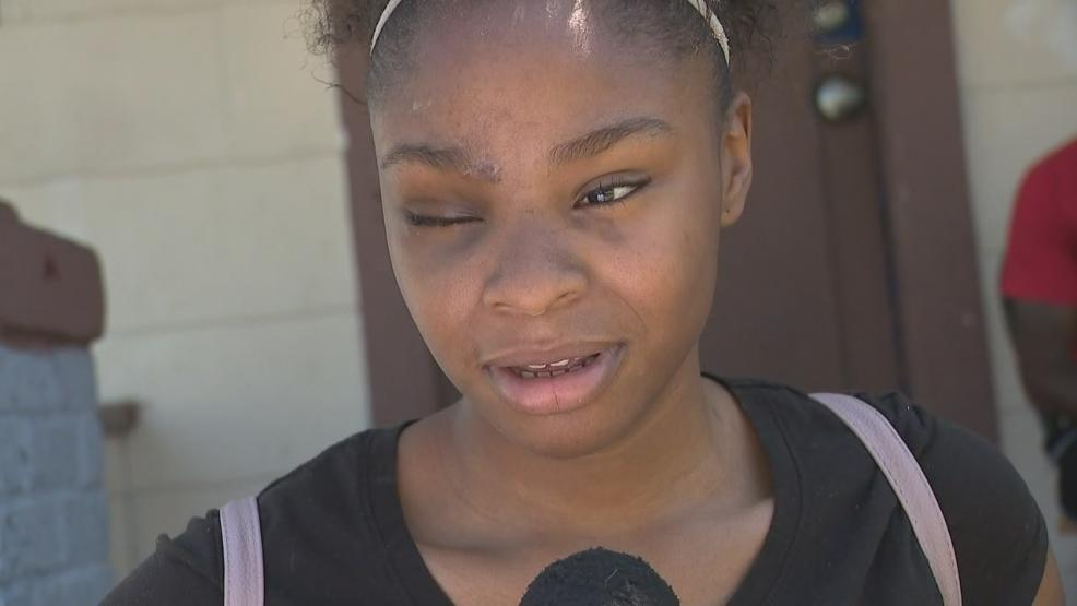 Kev-Ana Farr was wounded in the shooting. Her eye was injured and will require more surgeries to remove the bullet and eye, and give her a prosthetic eyeball. (WSYX/WTTE)